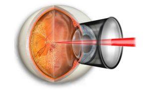 Лазерные неинвазивные методы лечения